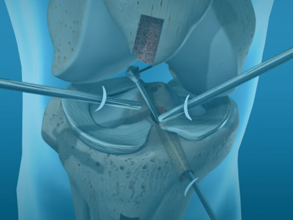 Patellar ACL Reconstruction