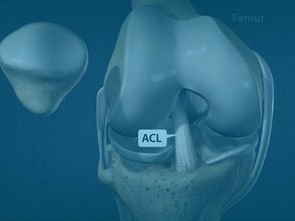 ACL Tear Video