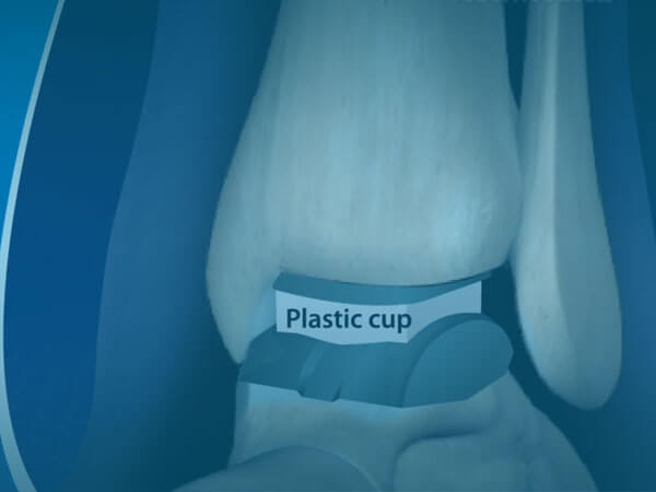 Watch Ankle Replacement