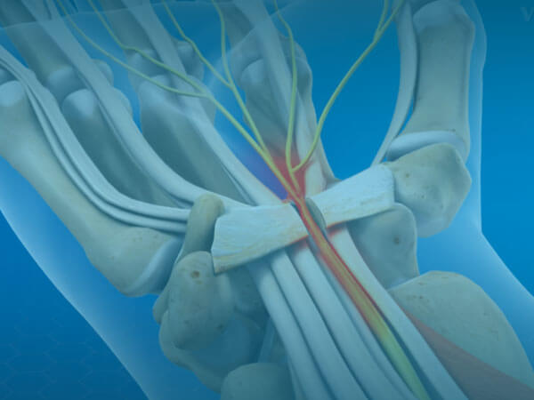 Carpal Tunnel Release What Happens During Surgery