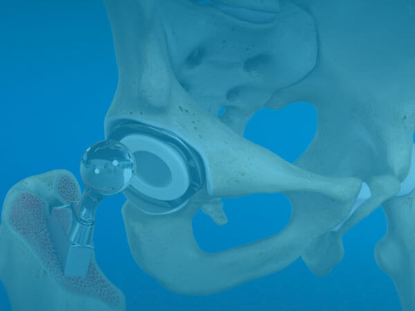 Hip Replacement Video Image