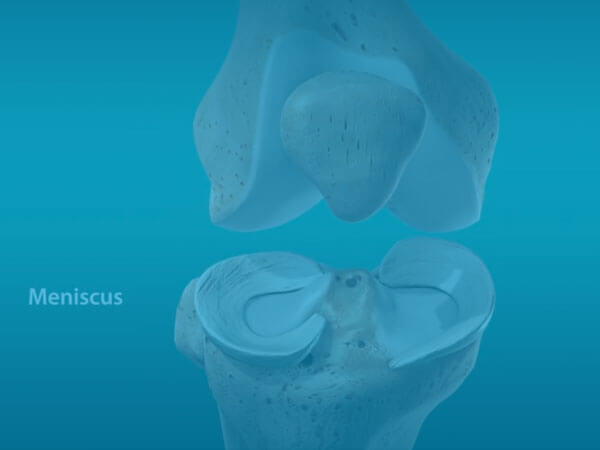 Meniscus Repair Video
