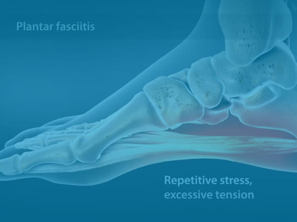 Watch Overview of Plantar Fasciitis
