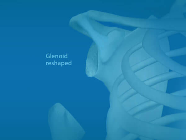 Watch Total Shoulder Replacement Surgery